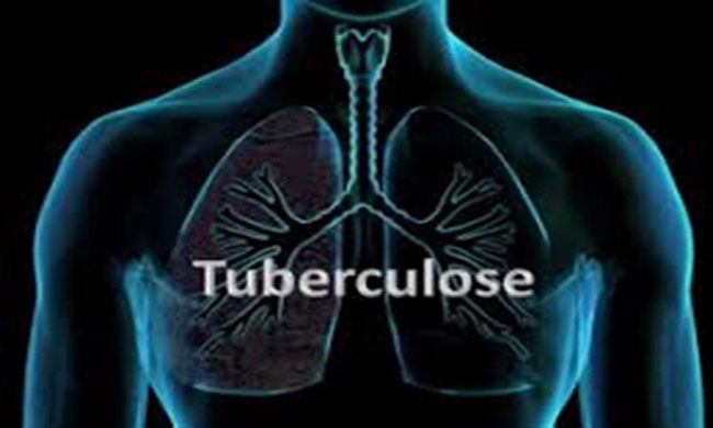 Health: Nearly 4,500 people die every day from tuberculosis
