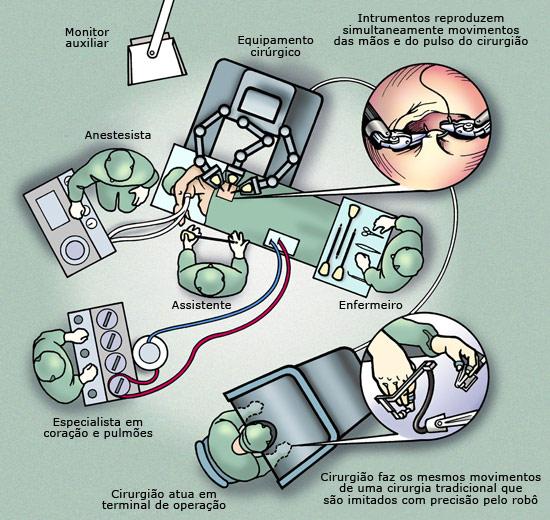 tecnologia-de-cirurgia-robotica