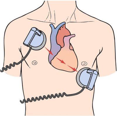 Ilustração com a posição correta das pás usadas para a cardioversão elétrica sincronizada