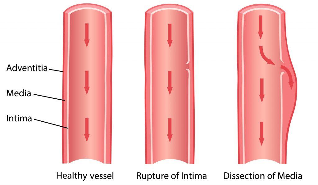 A dissecção de aorta é uma delaminação de sua camada média ocasionada pelo influxo de sangue através de um orifício de entrada na camada intima, como um rasgo, criando uma falsa luz no vaso.