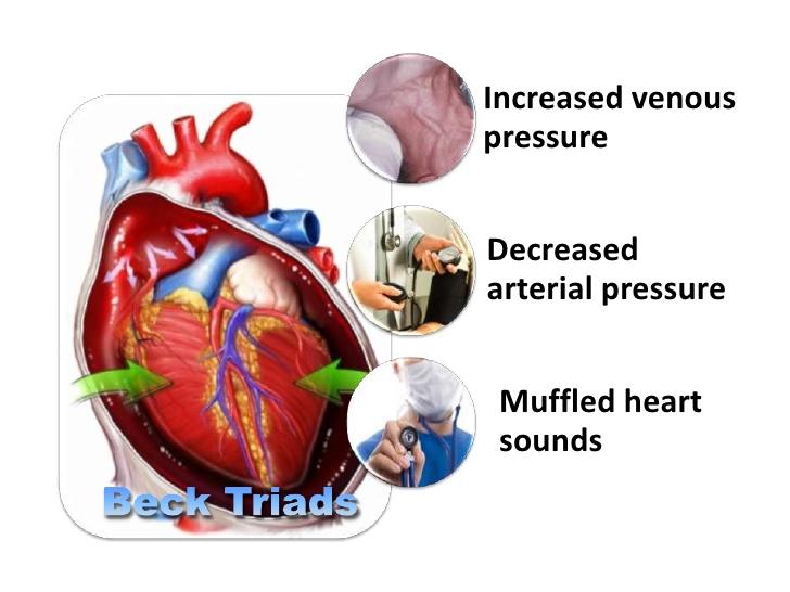 Componentes da tríade de Beck comentados anteriormente: Aumento de pressão venosa central com turgência de jugular; diminuição da pressão arterial; abafamento de bulhas cardíacas.