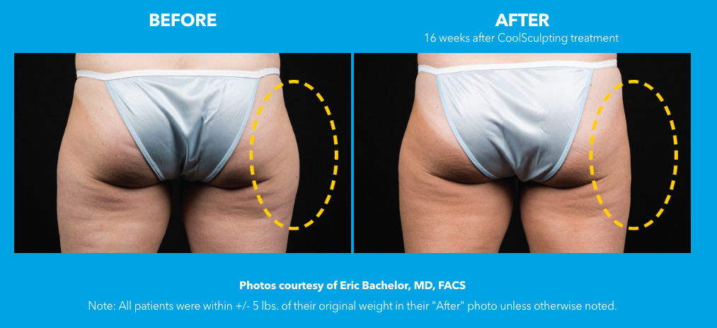 cellulite-butt-treatment-before-after