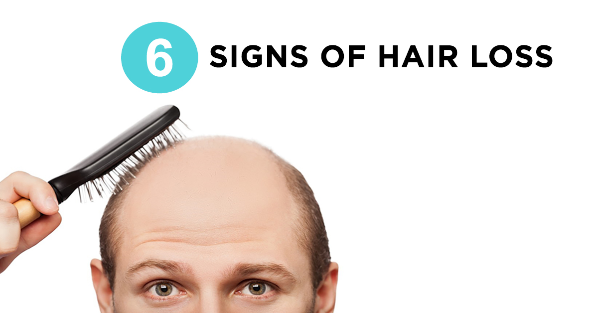 6 Early Signs You're Going Bald & 6 Ways to Fight It