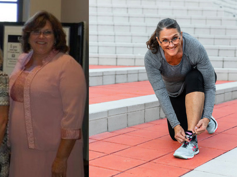 Michelle before and after. Michelle before her bariatric surgery; she's standing and smiling for the camera. After she is smiling at the camera and getting ready for a run outside.