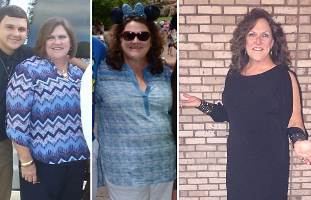 A woman progressing through her weight loss in three images