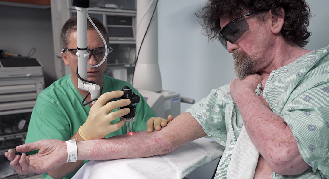 A physician applies laser therapy to a burn patient.