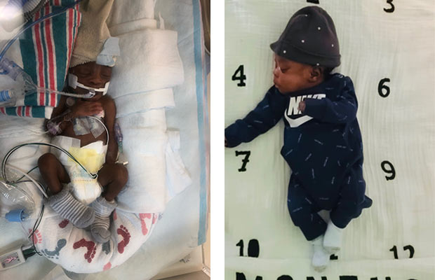 A collage of a newborn baby with tubes in the NICU next to an image of the same baby at home and growing
