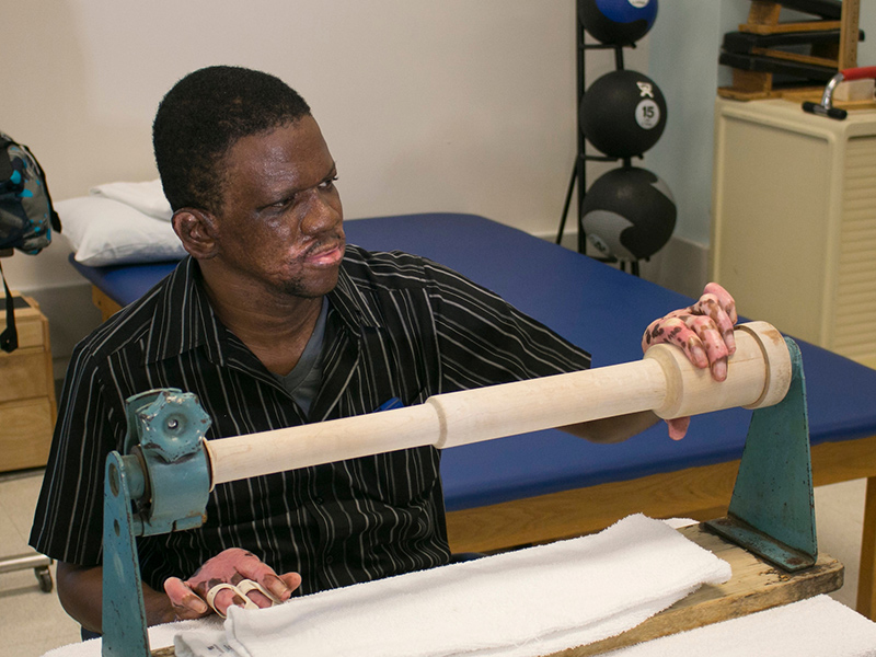 A male burn patient using a therapy tool with his left hand
