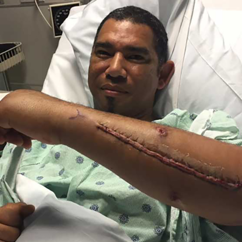 Lino Diaz laying on a hospital bed, his left arm is lifted showing a long scar