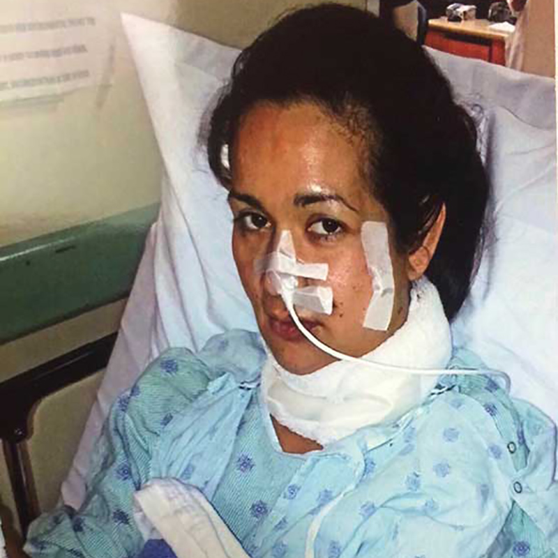 Evelin Matamoros on a hospital bed, she has a bandage on her left cheek, nose, and around her neck