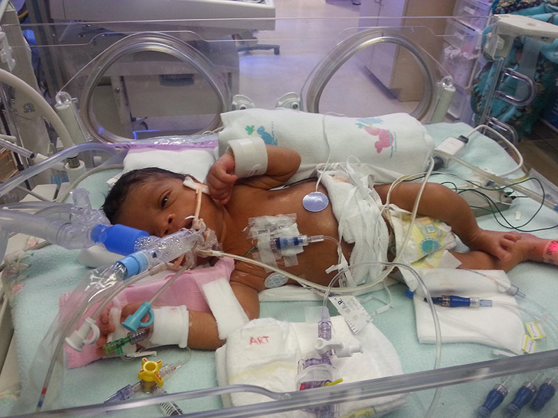 Baby in a hospital bassinet with tubes around its body