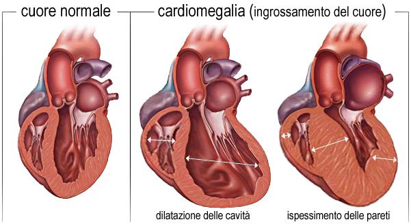 cardiomegalia-cuore_ingrossato