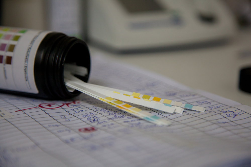 Find Out the Legal Truth: Can Your Employer Drug Test You?