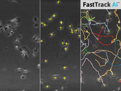 ケモタキシス アッセイ FastTrack AI画像解析(Chemotaxis FastTrack AI Image Analysis)