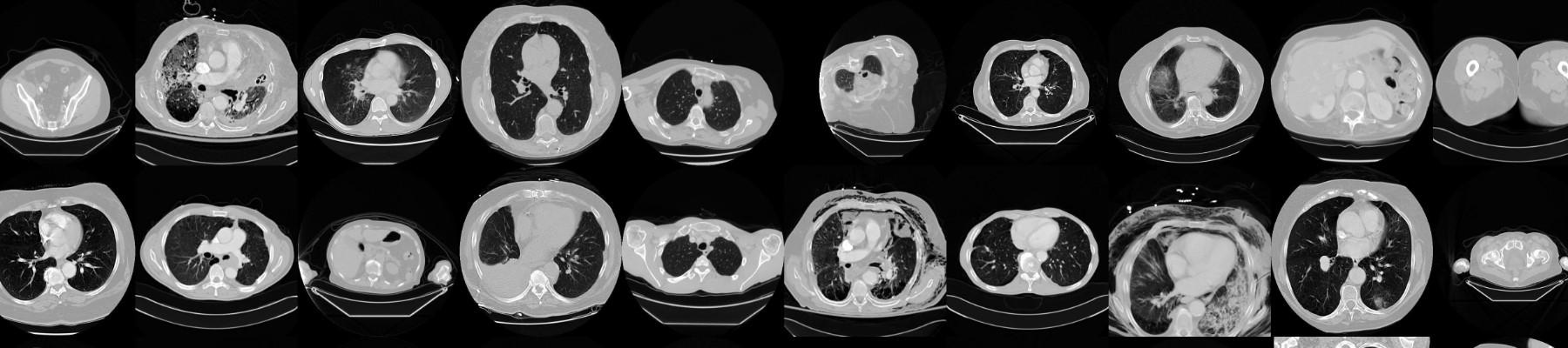 CT Medical Images | Kaggle