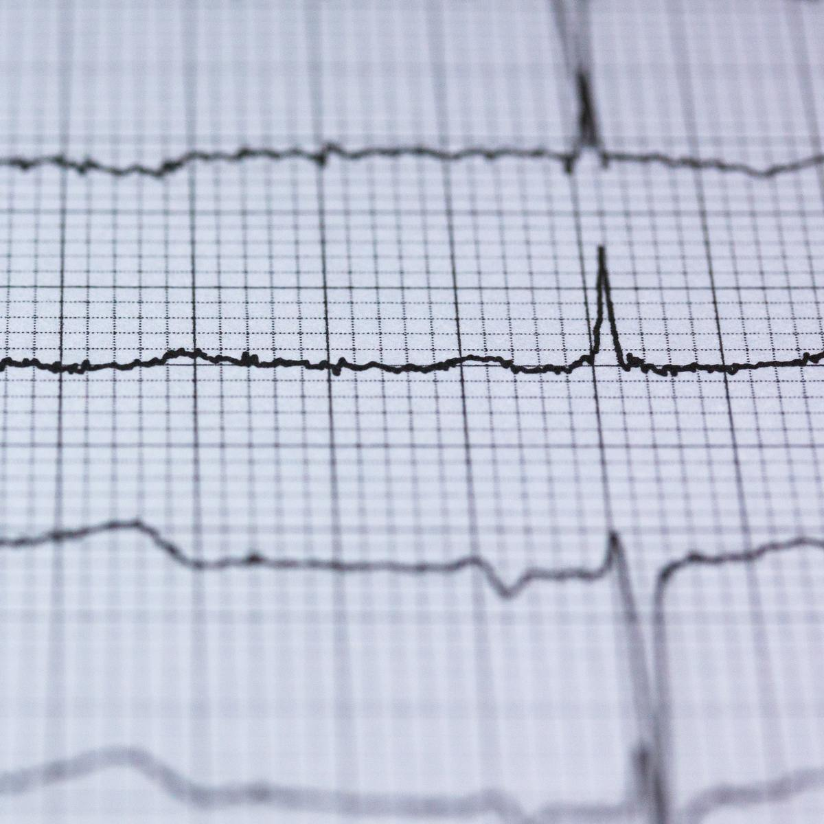 ECG Heartbeat Categorization Dataset | Kaggle