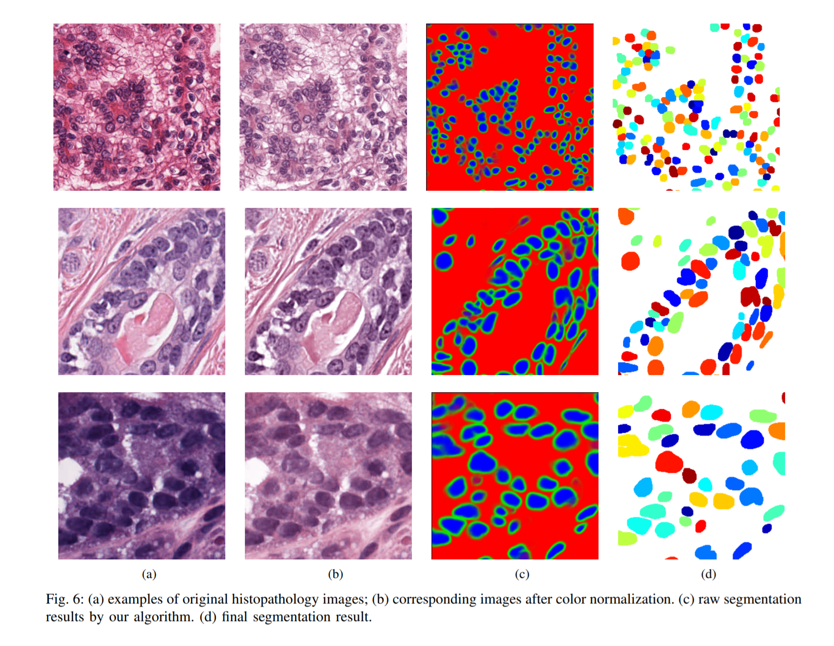 new unet paper for instance cell segementation | Kaggle