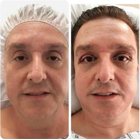 cirugía de parpados de Daniel Bisogno