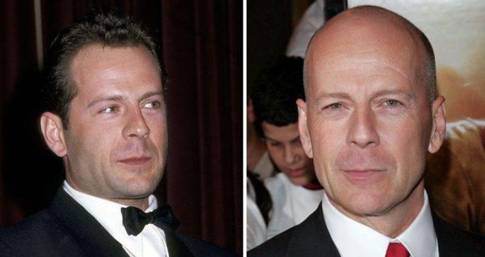 Bruce Willis antes y después