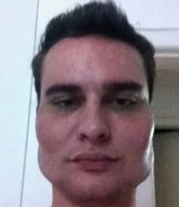 hombre deformado del rostro