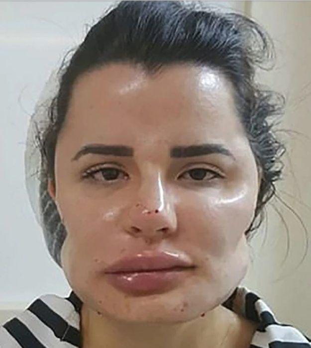 mujer deformada