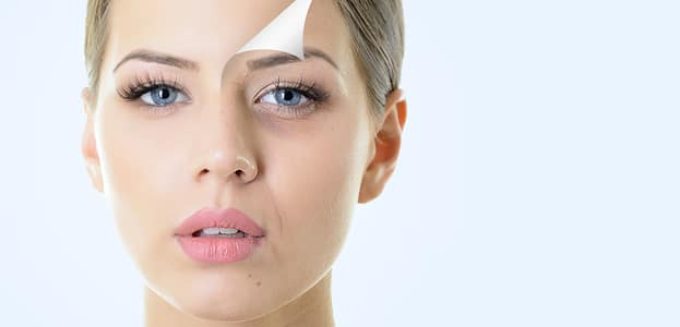 Laser away article image for How To Get The Most From Your Dermal Fillers