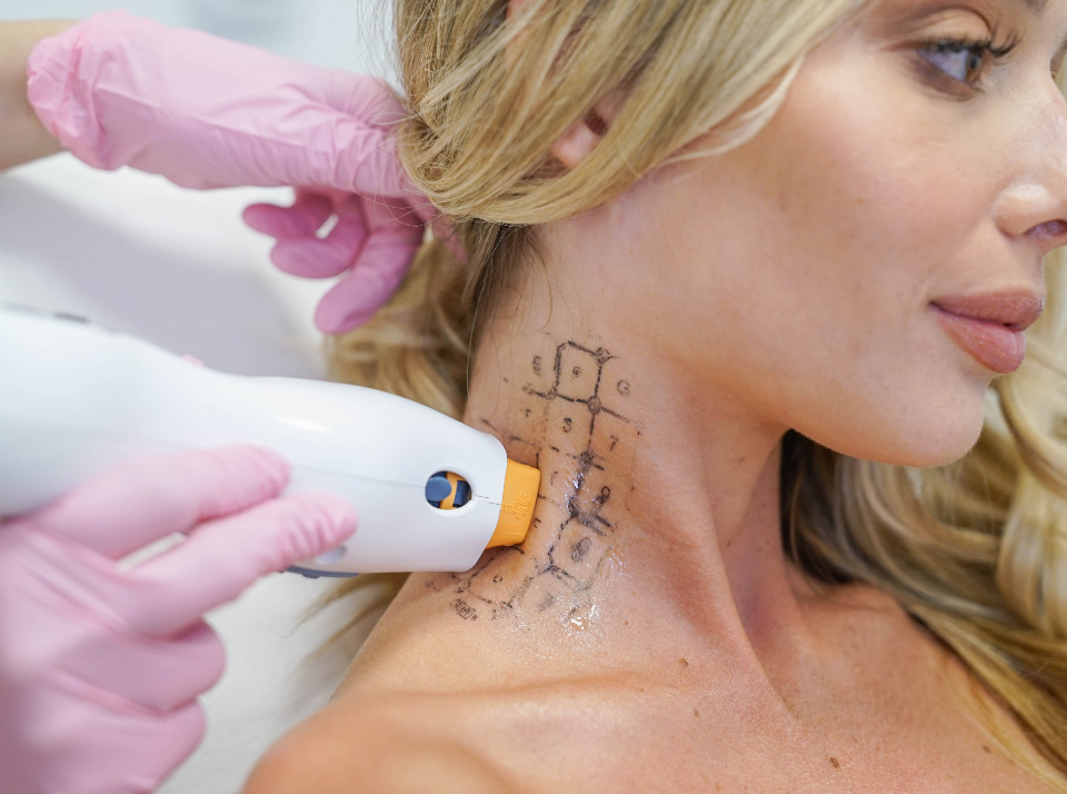 Image for image of a woman getting a thermage treatment on her neck