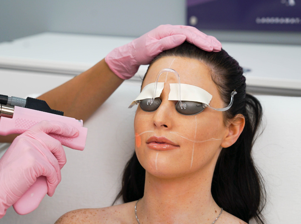 Image for Aftercare Fire + Ice Laser Facial Treatment