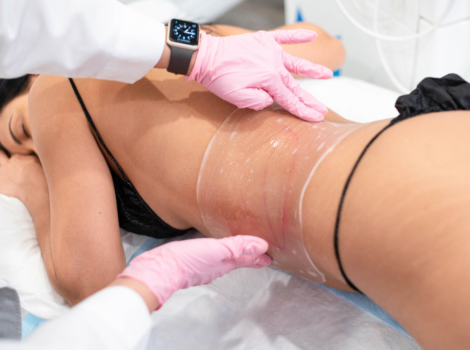 Image for woman coolsculpting stomach at Laser Away