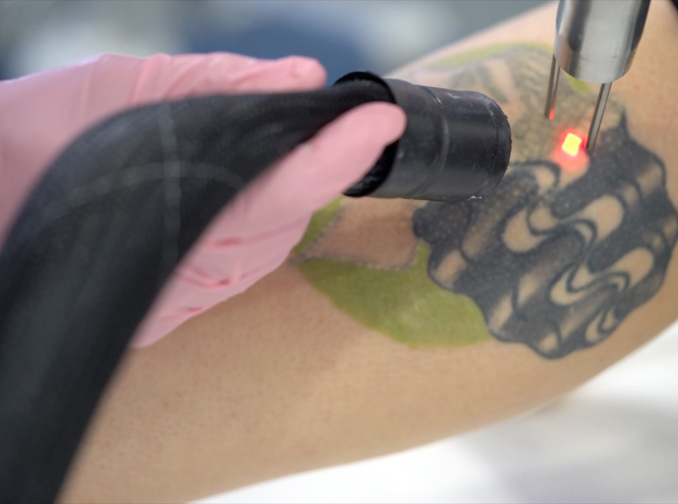Image for postcare laser tattoo removal