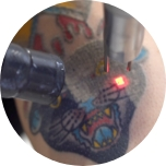 a close up of a tattoo being lasered off at Laser Away
