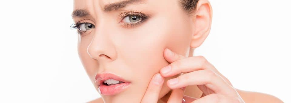 Laser away article image for How To Reduce The Look Of Acne & Acne Scars