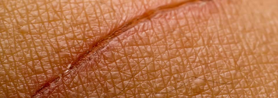 Laser away article image for 4 Innovative Scar Removal Treatments