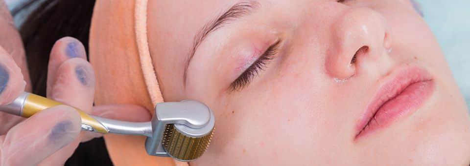 Laser away article image for Microneedling vs Laser Facials