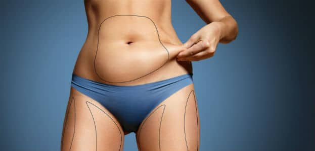 Laser away article image for Safe Alternative To Liposuction