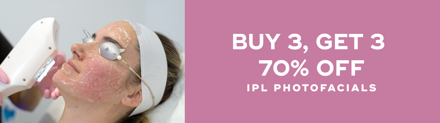 Buy 3, Get 3 70% Off IPL Photofacials