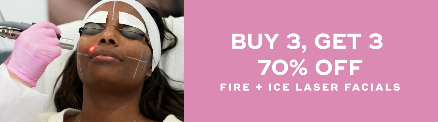 Buy 3, Get 3 70% Off Fire & Ice Laser Facials