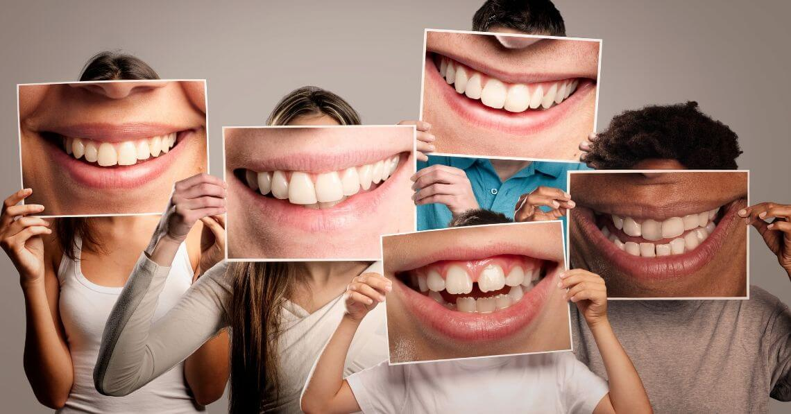 Young people holding laughing mouth pictures in front of their faces.