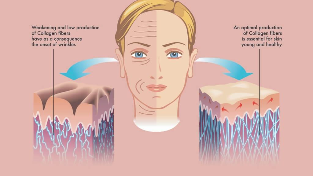 Collagen effect on skin