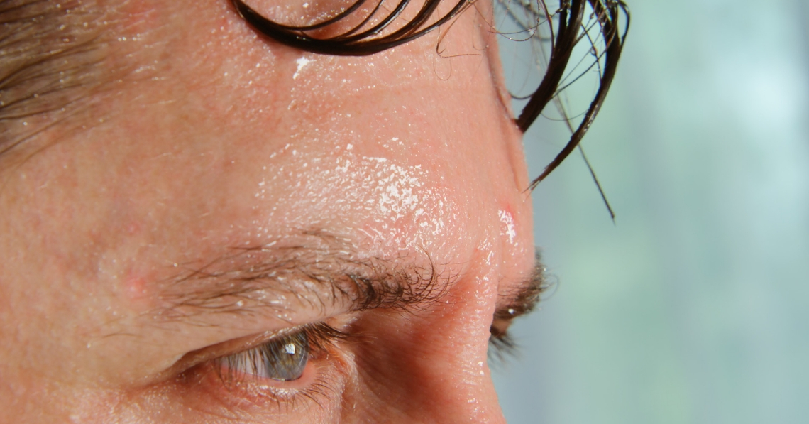Close up of sweaty forehead of a man