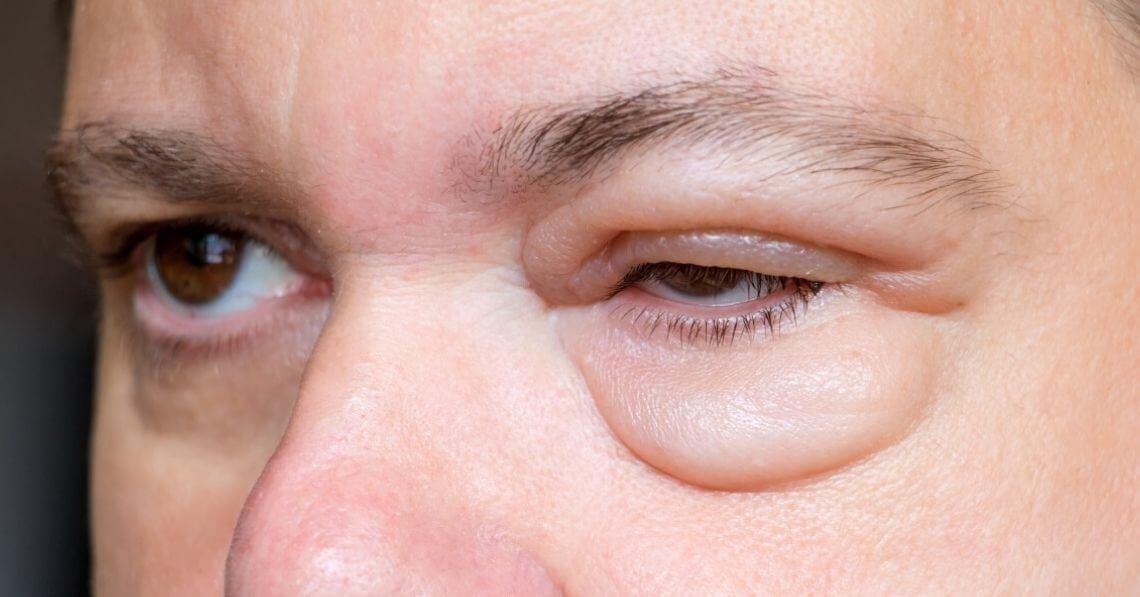 Swelling of the eye