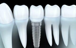 Quel remboursement pour un implant dentaire?