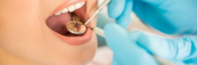 santé-remboursement-frais-dentaires