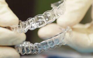 Tout savoir sur la mutuelle dentaire sans plafond