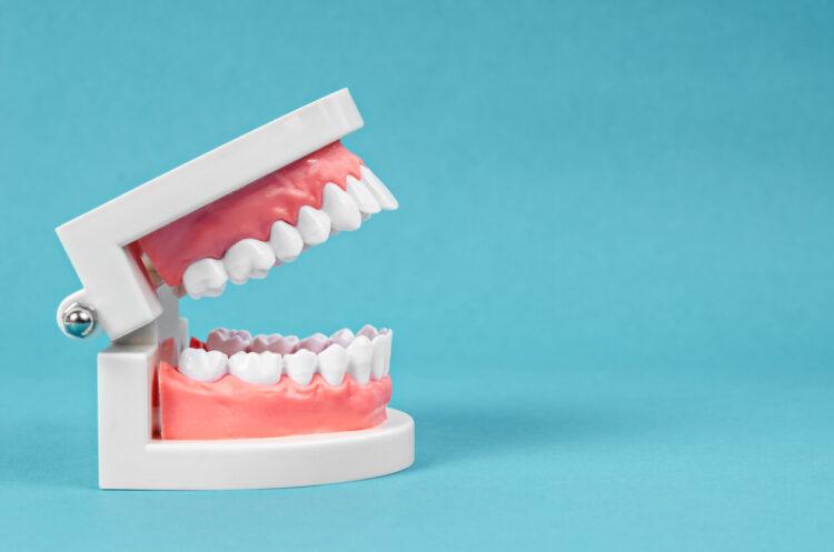 Quel est le remboursement des prothèses dentaires?