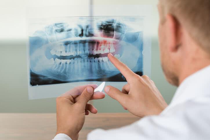 Quel remboursement pour vos soins chez le dentiste?