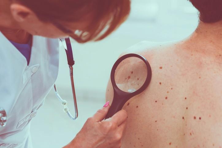 Dermatologue: remboursement et tarifs des consultations