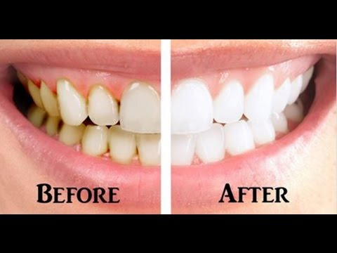 Before and After Gum Disease