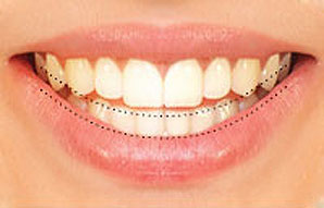 Straight teeth that are in harmony with your smile and lips
