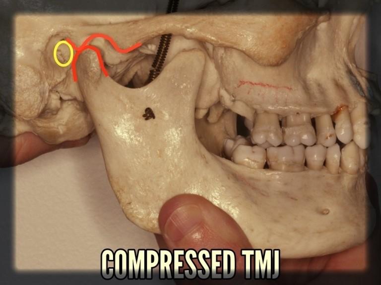 Compressed TMJ